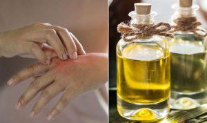 خشکی پوست در زمستان و تدابیر درمان آن