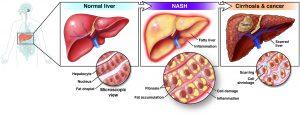 بیماری کبد چرب (استئاتوز کبدی)