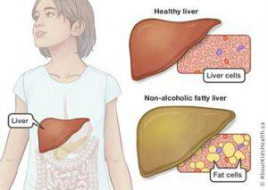 3 روش تشخیص بیماری کبد چرب غیرالکلی