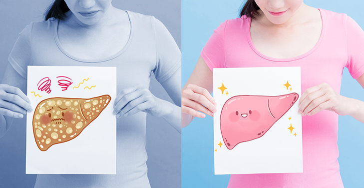 کبد - 5 اصل که باید در مورد کبد چرب بدانید بیماری کبد چرب