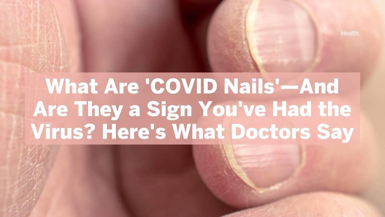 'ناخن های COVID' چیست - و آیا نشانه ای از ابتلای شما به ویروس است؟