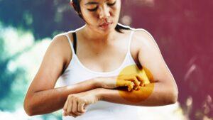 5 روش چگونه می توان خارش گزش پشه را متوقف کرد؟